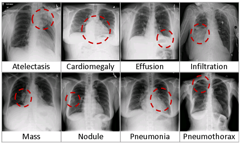 Chest X-ray diagnosis