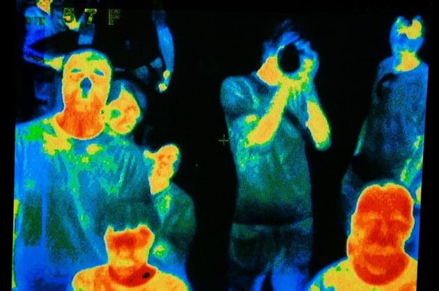 Thermal body temperature cameras
